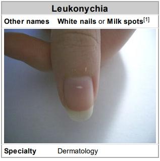 Leukonychia